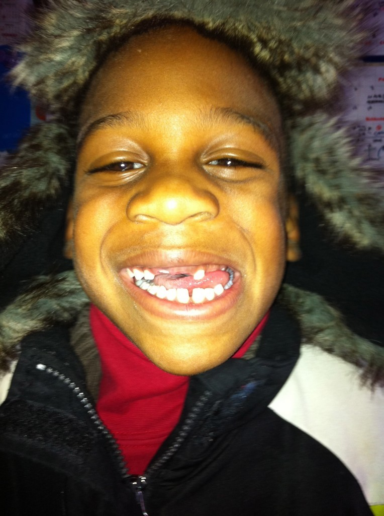 The Toothless Wonder